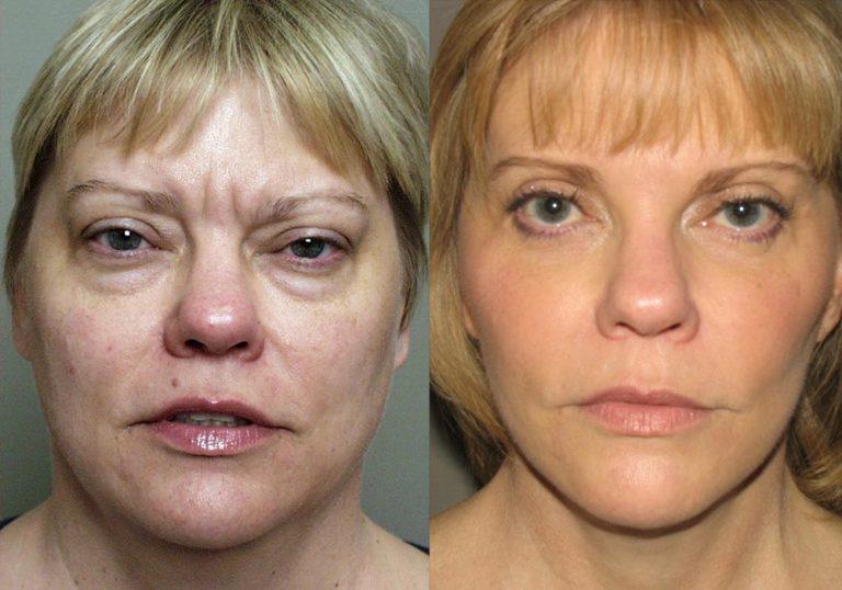 Facelift Patient 6 | Guyette Facial & Oral Surgery, Scottsdale, AZ