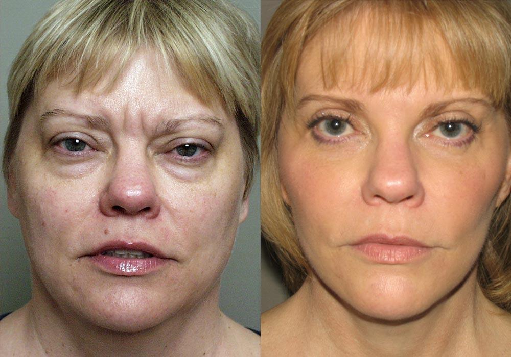 Facelift Patient 6   Guyette Facial & Oral Surgery, Scottsdale, AZ