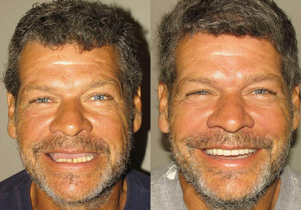 All-on-4 Photo Patient 7   Guyette Facial & Oral Surgery, Scottsdale, AZ