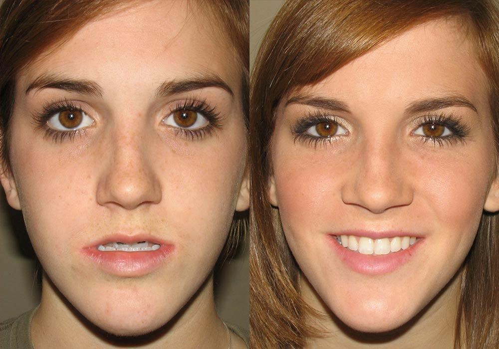 Corrective Jaw Surgery Photo Patient 4   Guyette Facial & Oral Surgery, Scottsdale, AZ