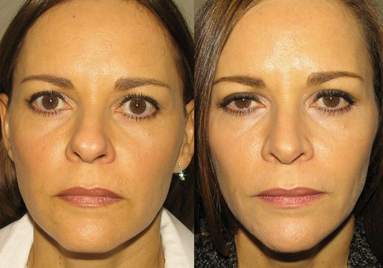 Rhinoplasty Patient 3 | Guyette Facial & Oral Surgery, Scottsdale, AZ