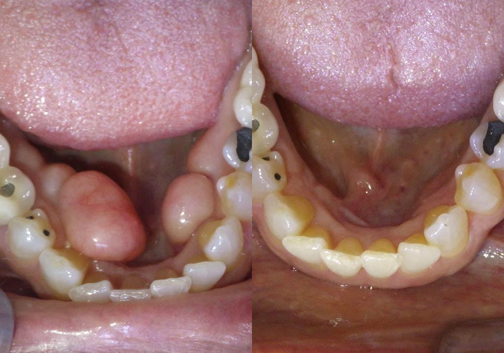Tori Removal Photo Patient 1   Guyette Facial & Oral Surgery, Scottsdale, AZ