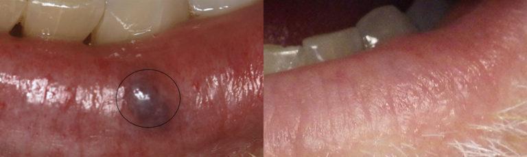 Lesion Removal Patient 1 | Guyette Facial & Oral Surgery, Scottsdale, AZ