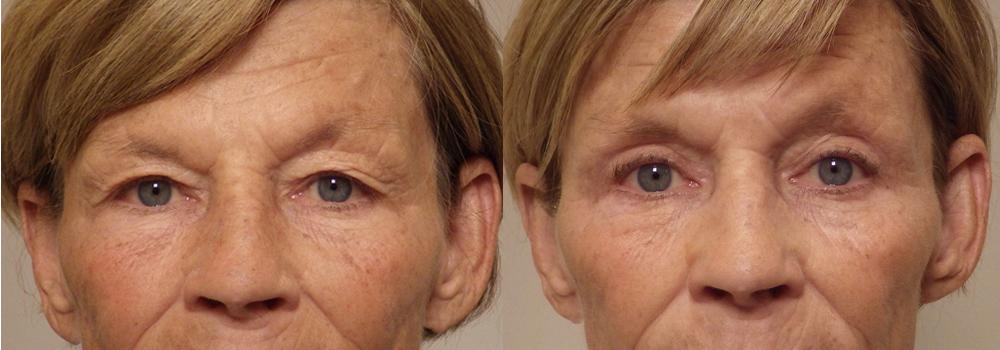 Eyelid patient 18   Guyette Facial & Oral Surgery, Scottsdale, AZ