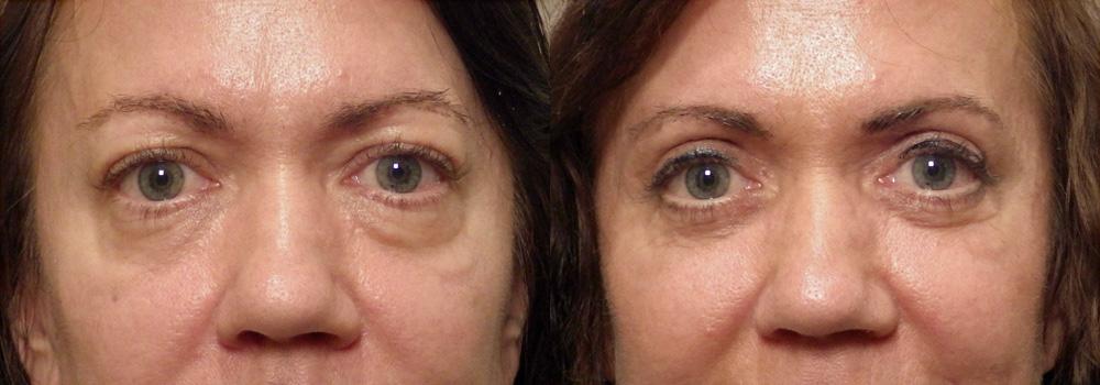Eyelid Patient 16   Guyette Facial & Oral Surgery, Scottsdale, AZ