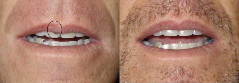 lesion removal patient 5 | Guyette Facial & Oral Surgery, Scottsdale, AZ