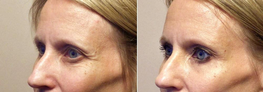 Botox Dysport Patient 1   Guyette Facial & Oral Surgery
