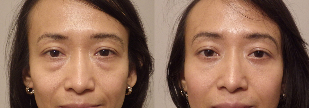 Eyelid Patient 19 | Guyette Facial & Oral Surgery, Scottsdale, AZ