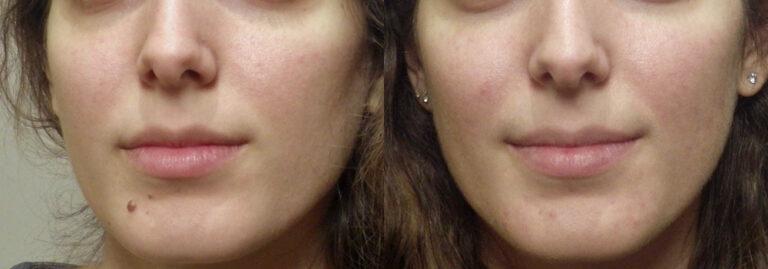 Guyette mole removal | Guyette Facial & Oral Surgery, Scottsdle, Phoenix, Avondlae
