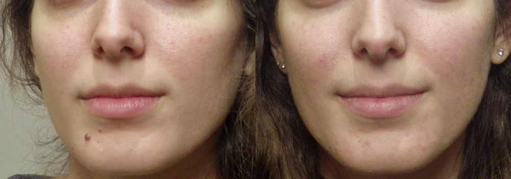 Guyette mole removal   Guyette Facial & Oral Surgery, Scottsdle, Phoenix, Avondlae