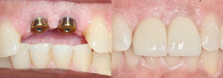 Guyette Facial & Oral Surgert | Scottsdale, Phoenx, Avondale