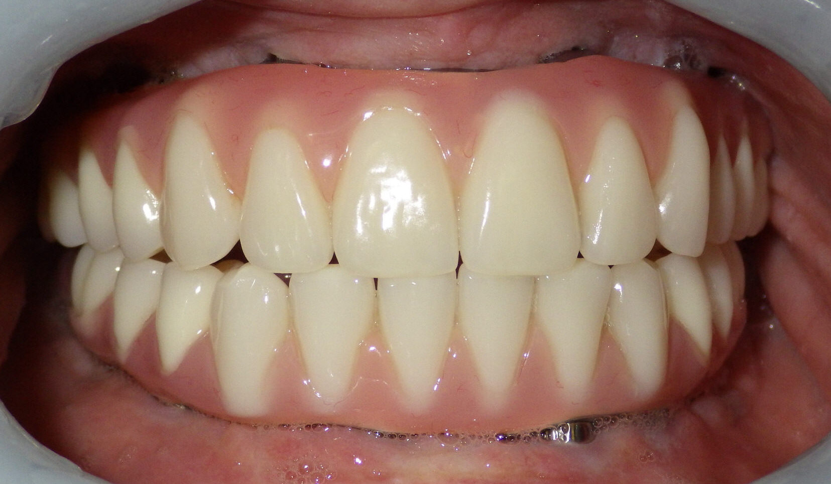 Post-procedure view of patient's teeth