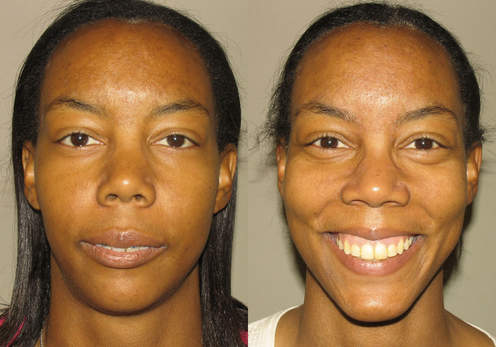 Jaw-Surgery Photo Patient 8
