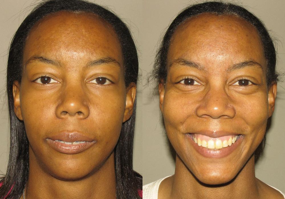 Jaw-Surgery Photo Patient 8