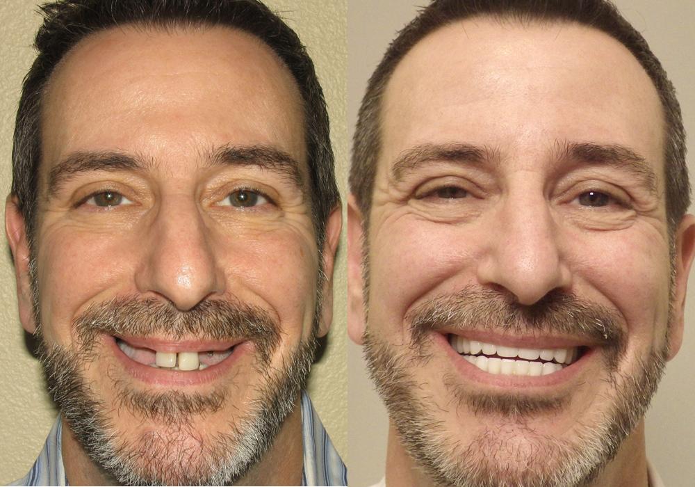 All-on-4-Photo-Patient-9   Guyette Facial & Oral Surgery, Scottsdale, AZ