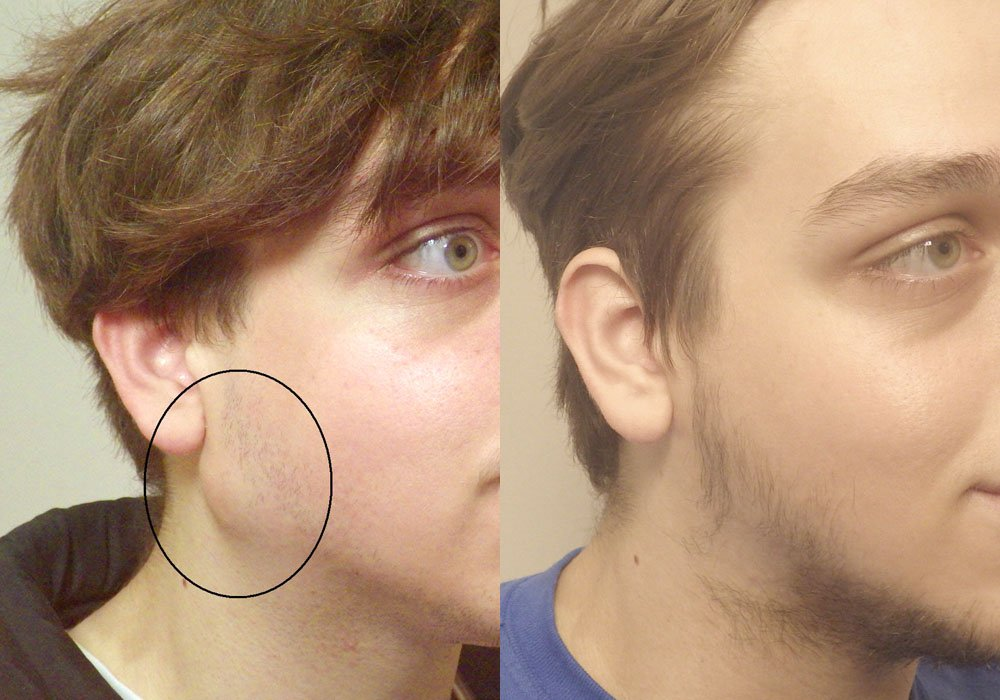 Facial Cyst Removal patient 1 | Guyette Facial & Oral Surgery Scottsdale, AZ