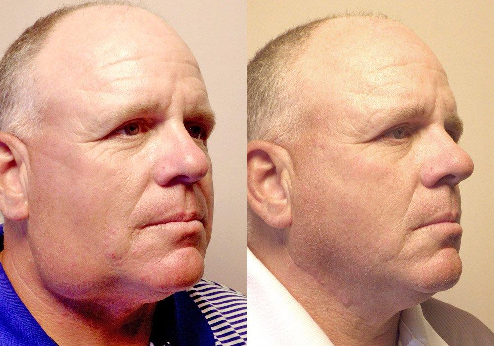 Facial-cyst-removal-patient 2   Guyette Facial & Oral Surgery Scottsdale AZ