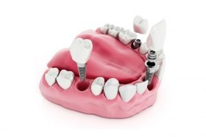 Dental Implants in Scottsdale by Guyette Oral Surgery