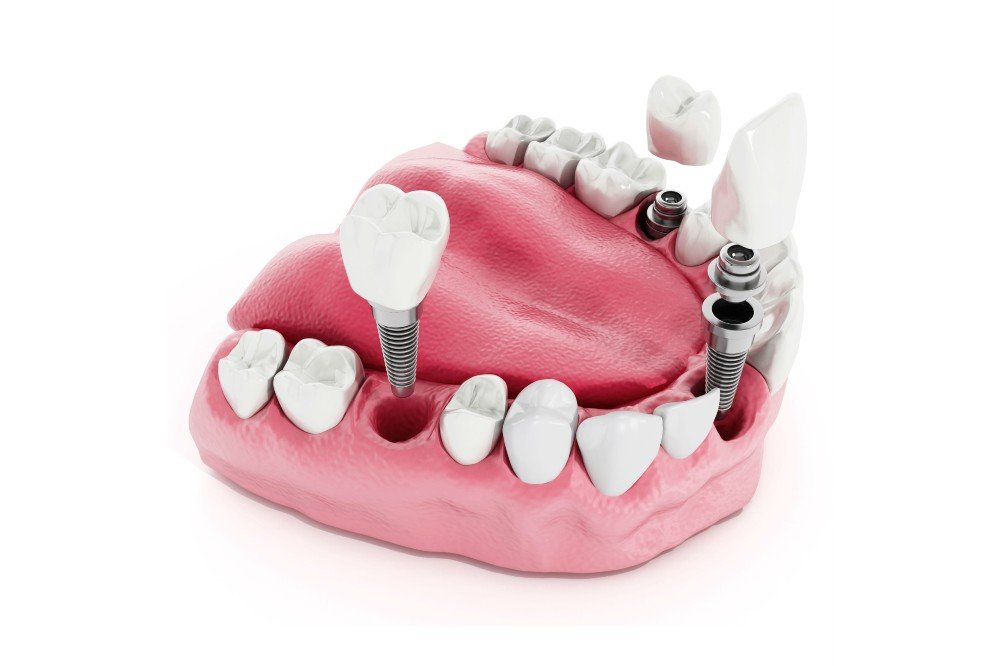 Dental Implants in Scottsdale by Guyette Oral Surgery
