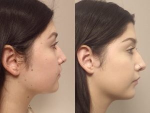 Facial mole removal photo patient 11 side view | Guyette Facial & Oral Surgery, Scottsdale, AZ