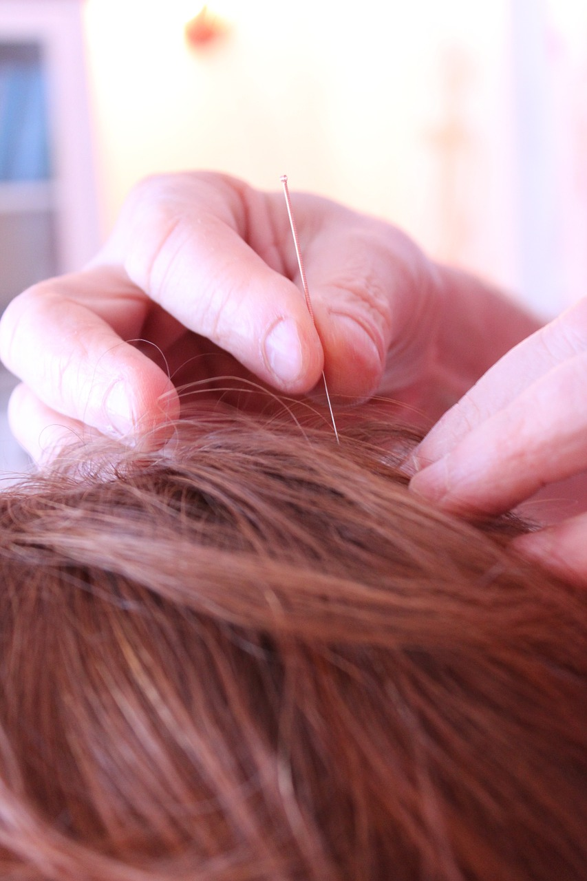 What is Acupuncture Medicine?