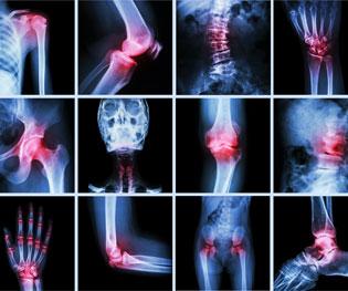 Rheumatology-SM