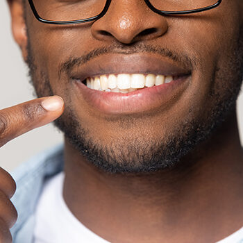 Closeup View African Guy Pointing Finger To White Toothy Smile