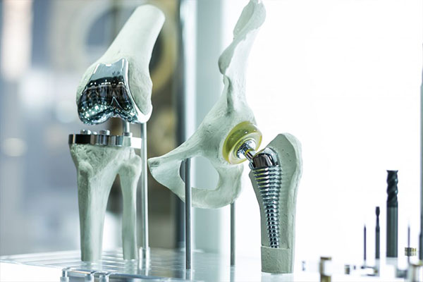 Joint replacements and surgical replacements