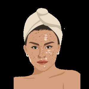 Skin Concerns Blemishes