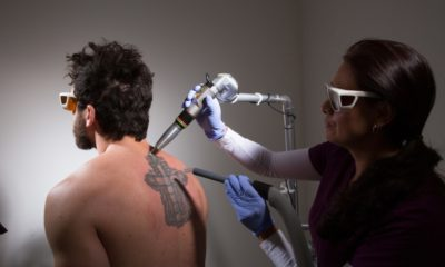 Busting 9 Common Laser Tattoo Removal Myths