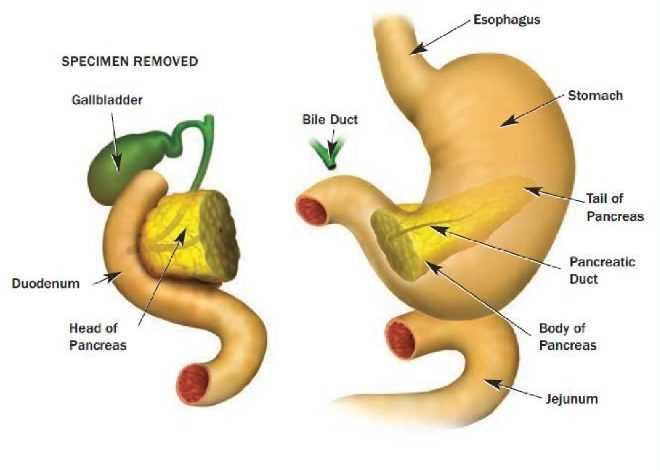 Pancreas whiple