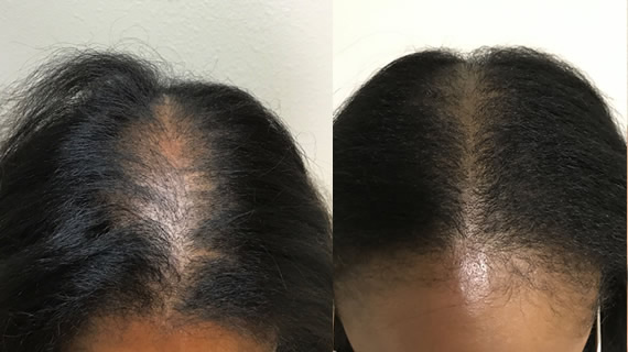 Ex6 - Scalp Micropigmentation - Hairline Studios