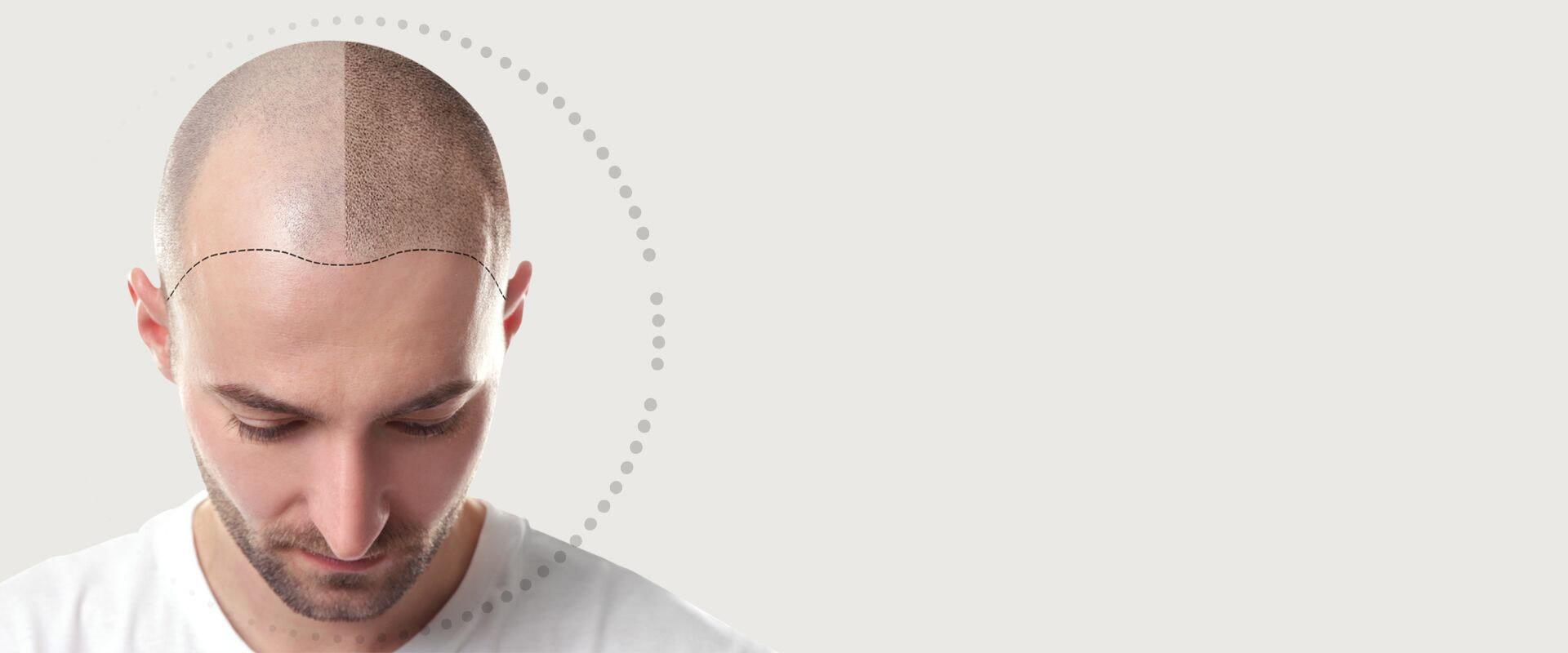 Scalp Micropigmentation - Effective Solution for Hair Loss - Hairline Studios