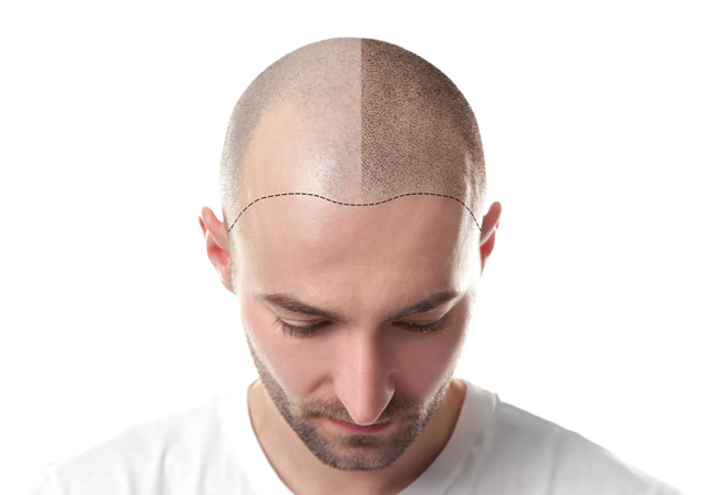 Micropigmentation Process Explained - Hairline Studios