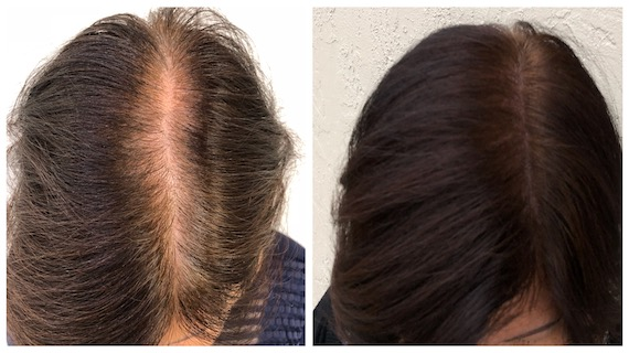 Ex9 - Scalp Micropigmentation - Hairline Studios Women