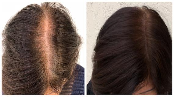 Ex9 - Scalp Micropigmentation - Hairline Studios Women