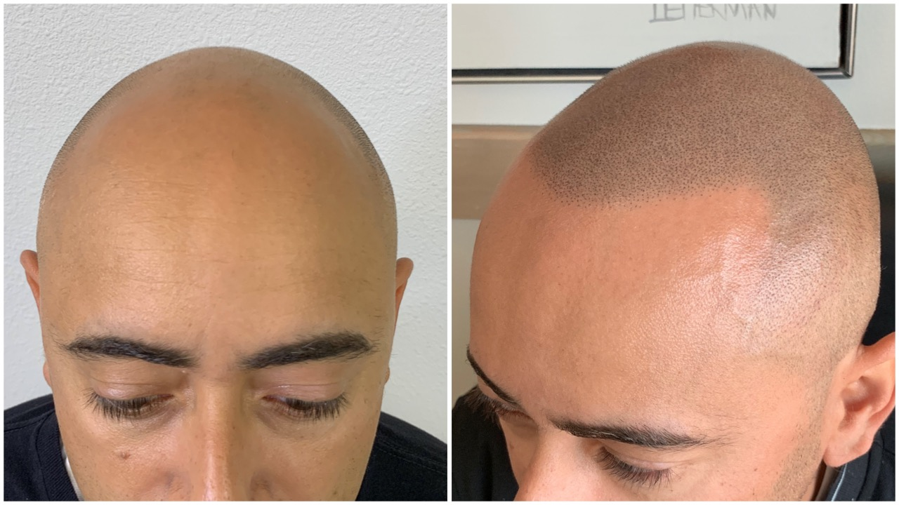 scalp micropigmentationhair tattoo