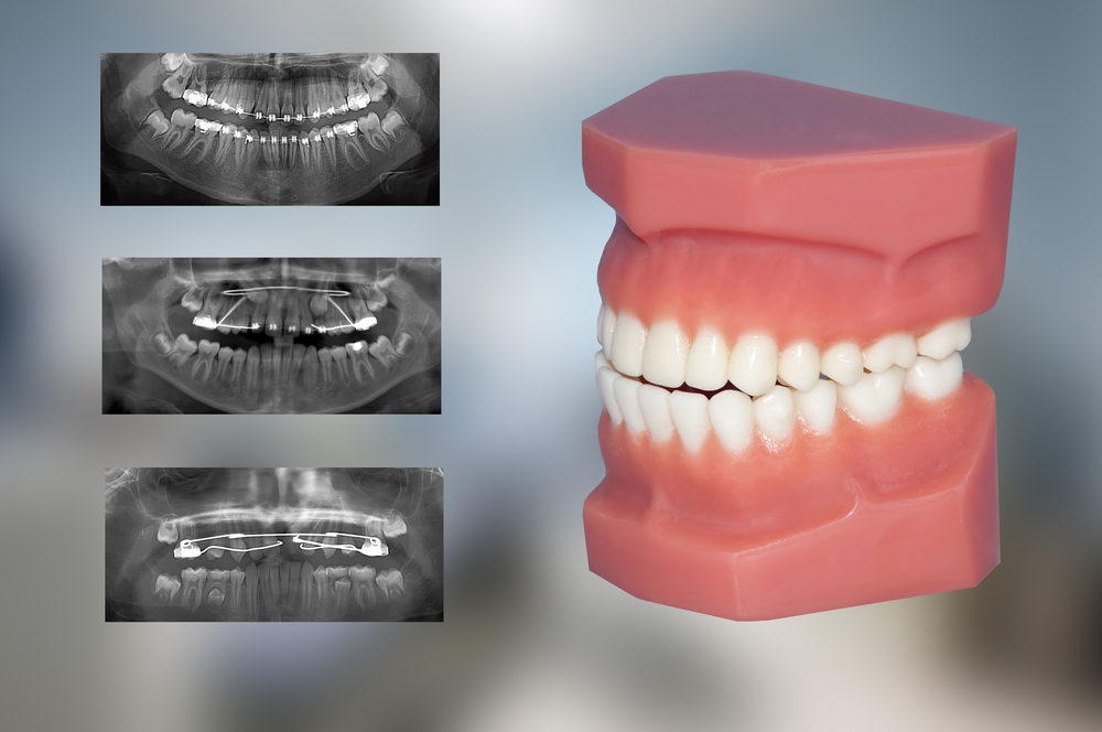 dental model and x-ray of three fixed appliances used for ortho