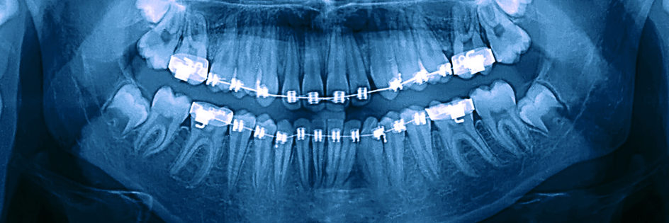 x ray of teeth with orthodontic braces