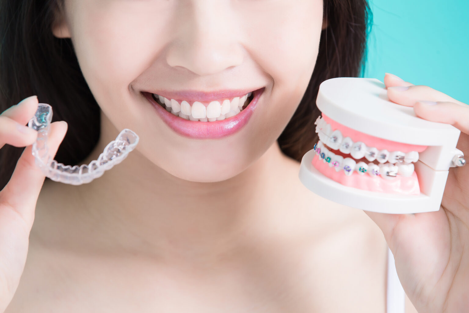 Traditional Metal Braces vs. Invisalign®: Know the facts so you can make the best decision for your lifestyle!