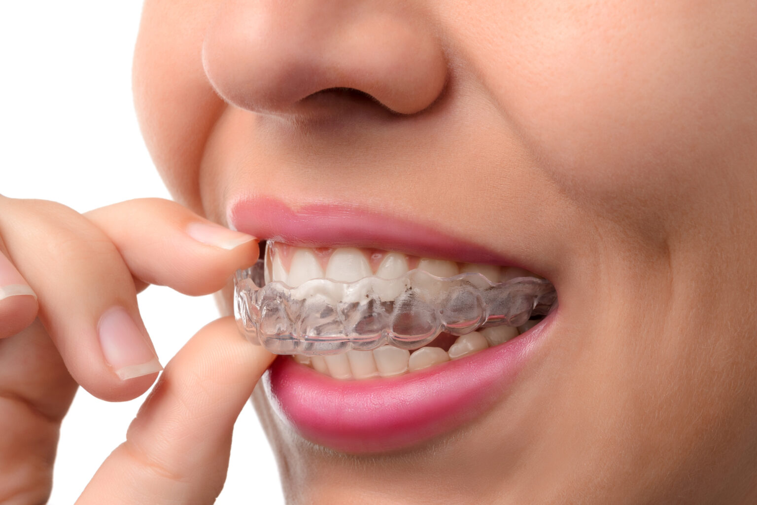 Our Orthodontic Options