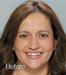 Claudia-before