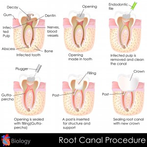root-canal-300×300
