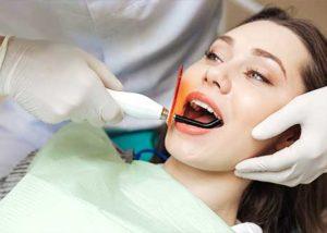 Root canal- Eugene - Tillman Family Dental