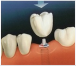 Dental-Implants