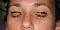 blephroplasty-2