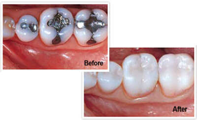 deep caries fix with root canal treatment