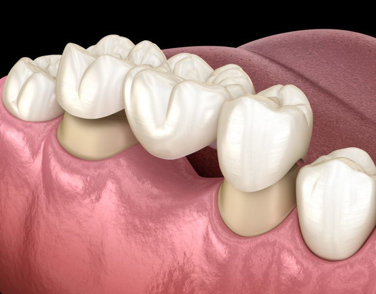 dental bridge crowns