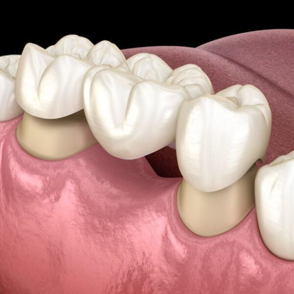 dental bridge crowns