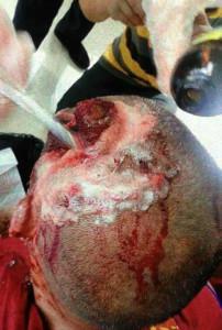 Tibetan monk Tashi Sonam, shot in the head